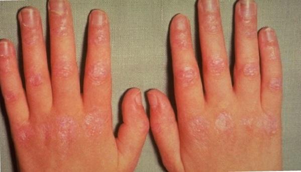 Dermatomyositis.